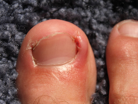 7 Myths of Ingrown Toenails