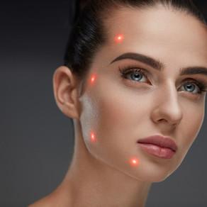 O laser do verão para o seu rosto
