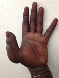 Infection de la main