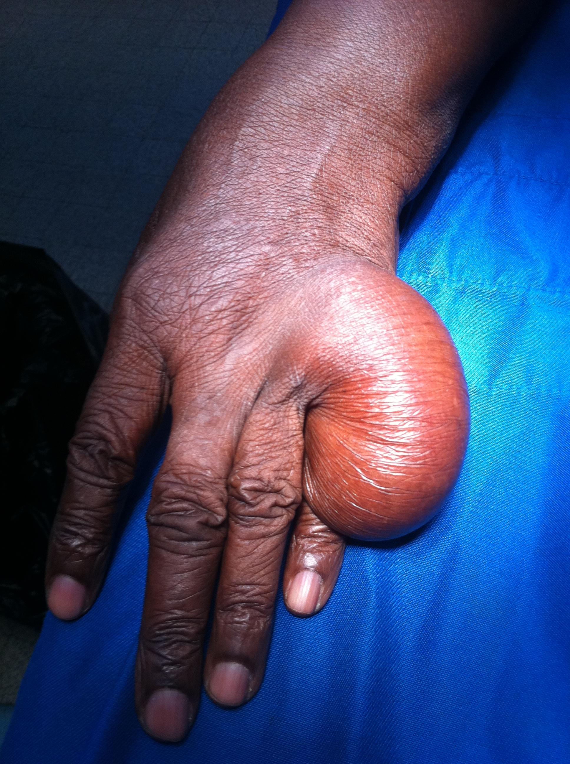 Lipome de la main (boule de graisse)