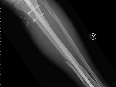 Comment traite t-on une fracture?