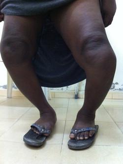 Importante arthrose des genoux avec déformation