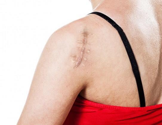 Cicatrice disgracieuse