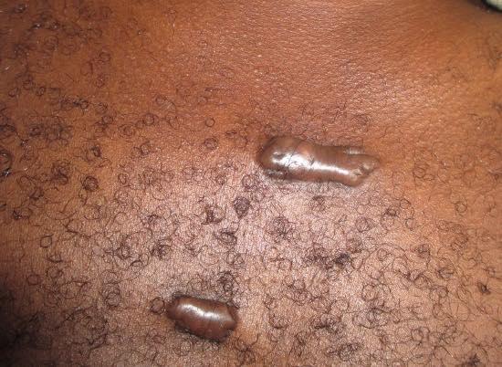 Cicatrices chéloïdes