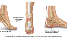 Plantar Fascia Ligament: It's Role In Foot Health and Mobility