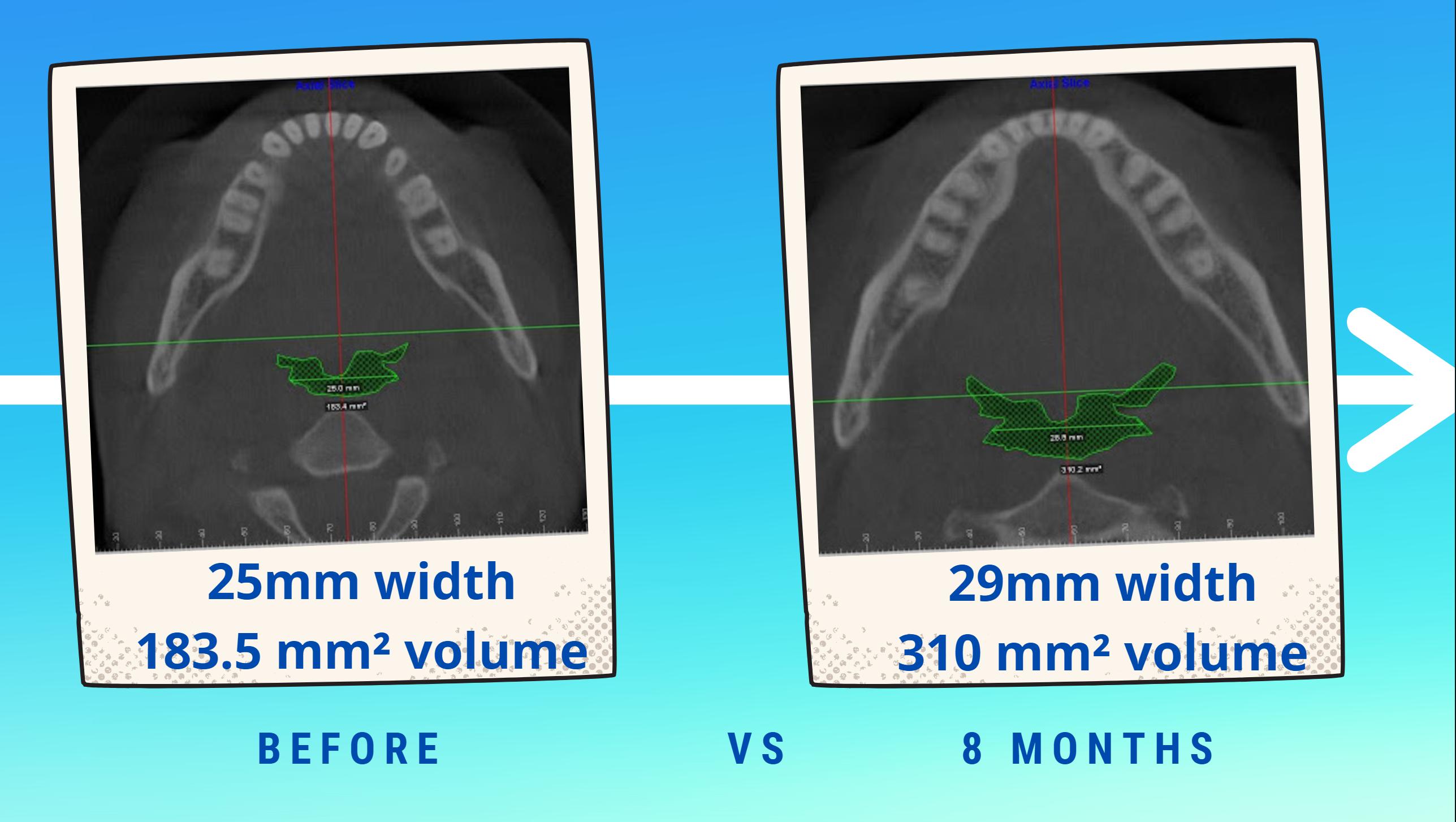 Upper airway volume increase