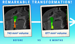 70% airway volume increase in 8 month