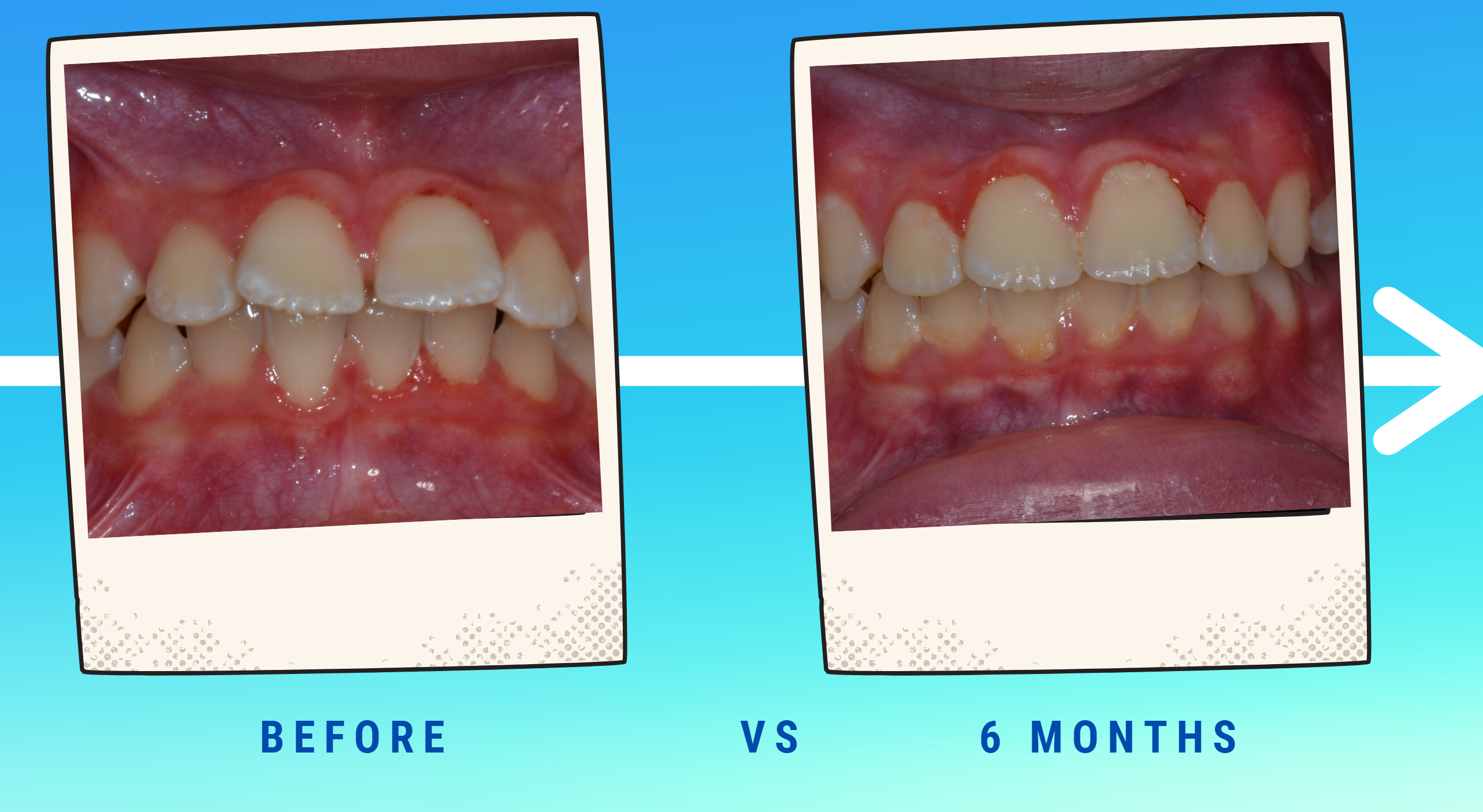 6 month tooth alignment WITHOUT braces!
