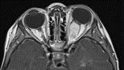 glioma óptico