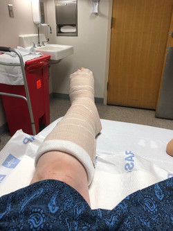 3X Broken ankle