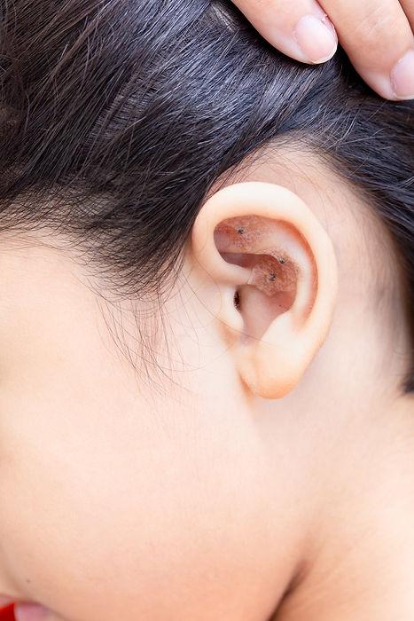 Lettuce seed in ear kid cure Lymph edema