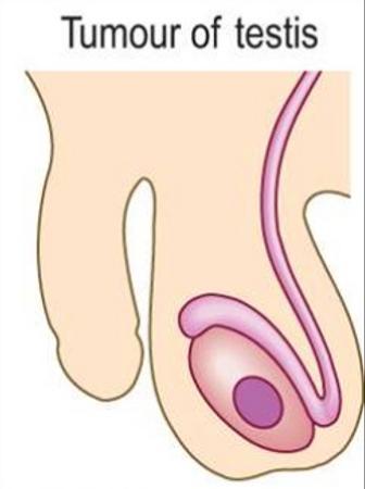 tumour of testis.png