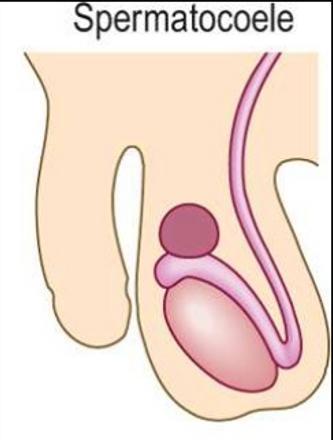 epididymal cyst.png