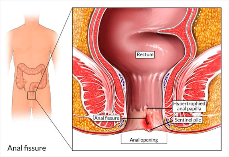 Anal Fissure - Adult