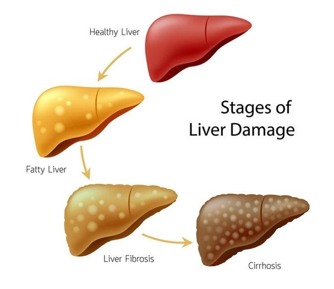 Cirrhosis of Liver
