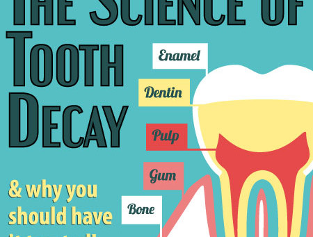 The Science of Tooth Decay
