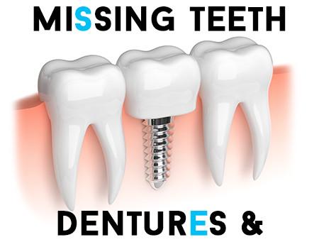 Replace Missing Teeth – Dentures & Dental Implants