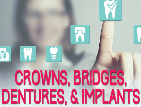 Crowns, Bridges, Dentures, and Dental Implants: The Facts
