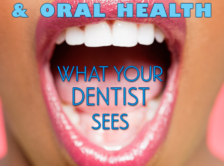 Diabetes and Oral Health: What Your Dentist Sees