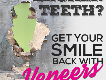 Veneers Can Give You Back Your Smile!