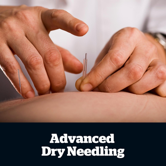 A form of western acupuncture, dry needling is a proven evidence-based treatment for muscle tension and pain.   This technique can be used in the treatment of acute and chronic back pain, chronic neck pain, tension and migraine headaches, pelvic girdle pain, knee osteoarthritis, lateral elbow pain and shoulder conditions.