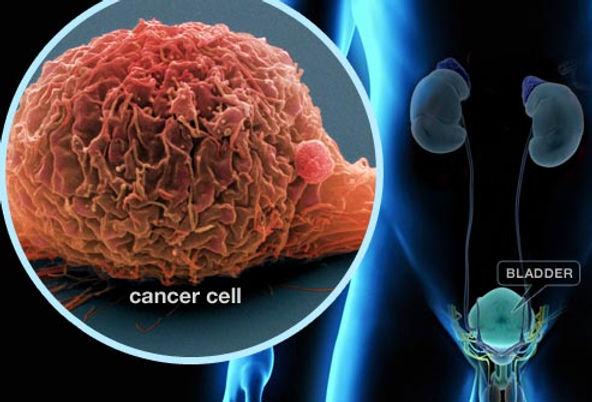 illustration_of_bladder_cancer.jpg