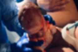 newborn baby being born