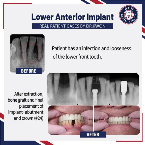 Lower Anterior Implant