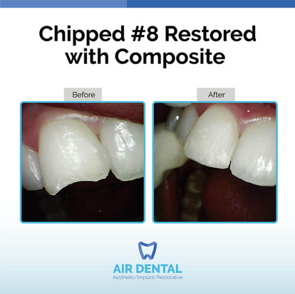 Chipped #8 Restored With Composite