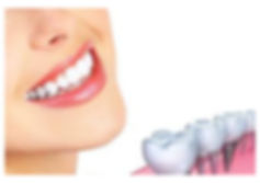 iSmile Dental - General Family Cosmetic Implants Invisalign FastBraces Dentist in Arlington Fort worth Chisholm Trail
