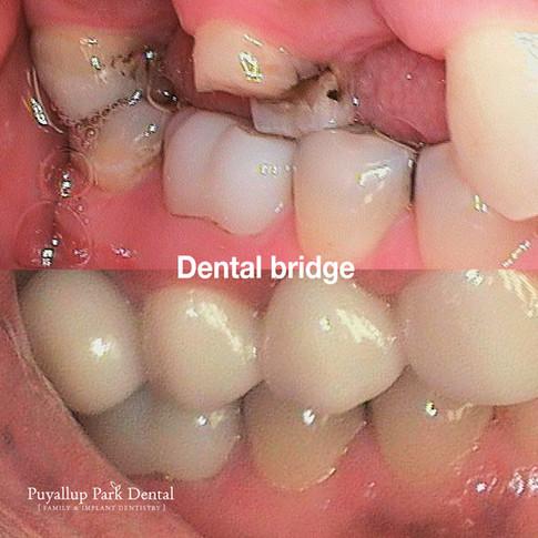 Puyallup park dental_Dental bridge (Prin