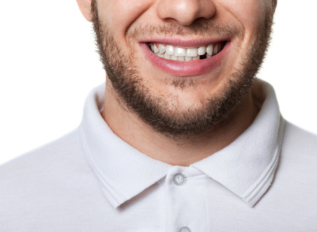 Auburn Residents Ask: What Are the Consequences of Missing Teeth? - Shaun Lee, DDS