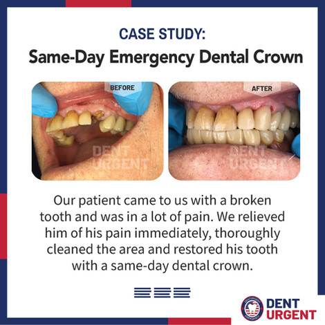 DentUrgent Case Study-Same day Dental Cr