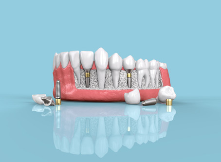 What are the Benefits of Dental Implants? General Dentist in Bellevue Explains