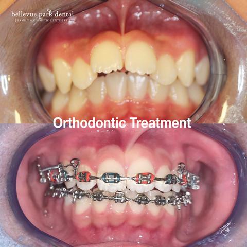 Orthodontic Treatment_ Bellevue Park Dental