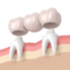 bigstock--D-Render-Of-Dental-Bridge-Wit-