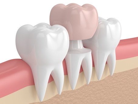 How a Dental Crown Restores a Tooth, From Your Family and General Dentist in Beaverton, Oregon