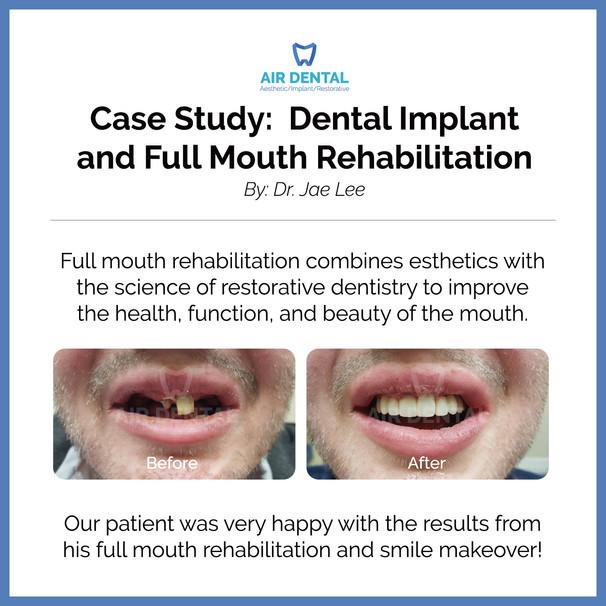 Dental Implant and Full Mouth Rehablitation