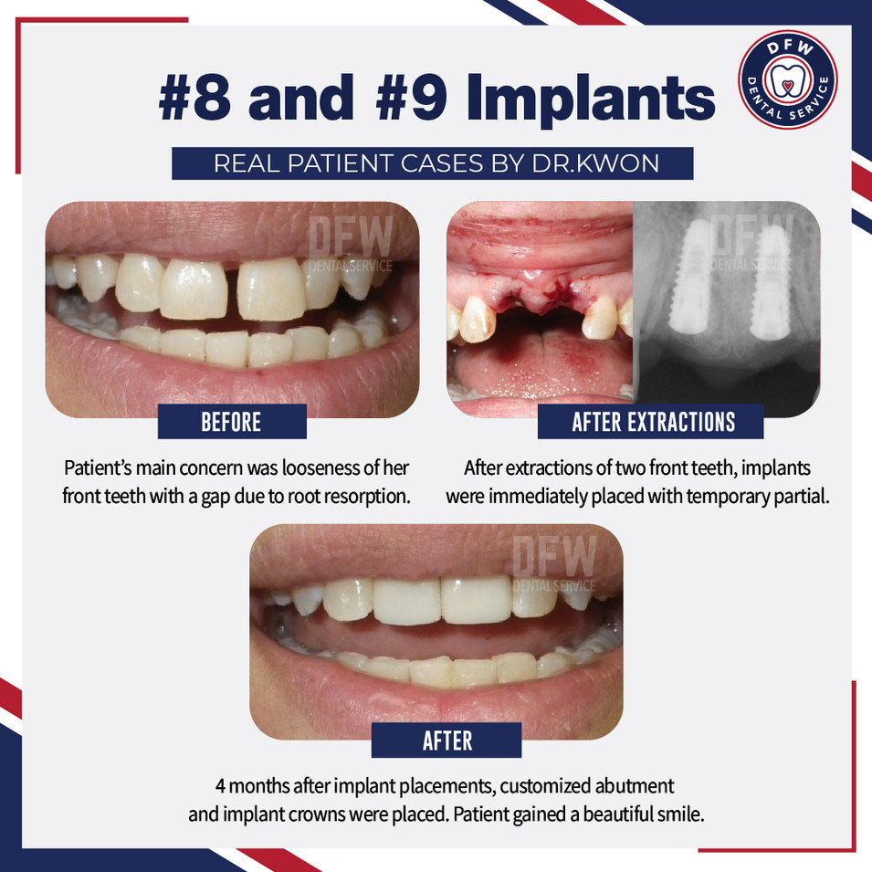 #8 and #9 Implants