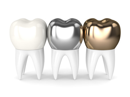 How a Dental Crown Restores a Tooth, From Your Family & General Dentist in Bellevue, Washington