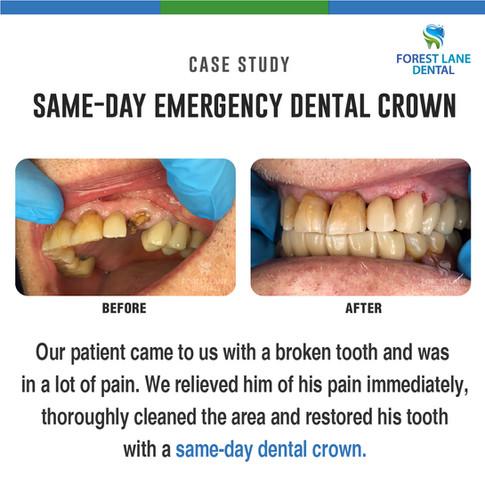 Same Day Emergency Dental Crown