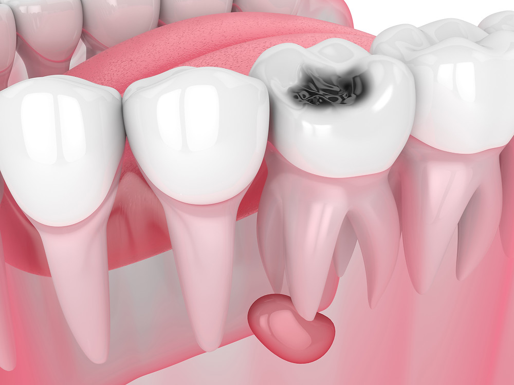 Emergency Dentist of Portland, Gresham, Happy Valley, Milwaukie | OR 97233