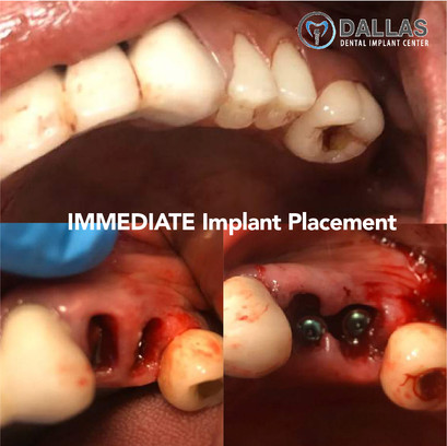 Immediate Implant Placement