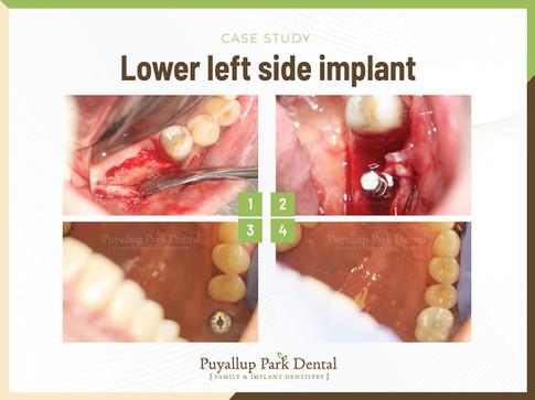 Lower Left Side Implant