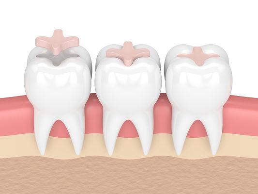 Bellevue Park Dental - Family Cosmetic Implants Invisalign Braces Dentist in Bellevue, WA 98008.