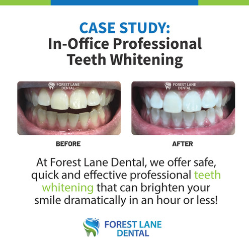 In-Office Professional Teeth Whitening