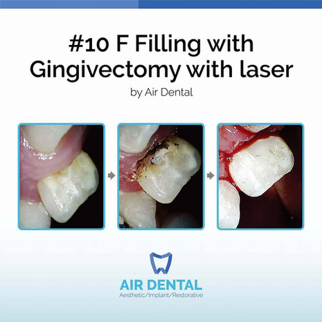 #10 F Filling with Gingivectomy with Laser