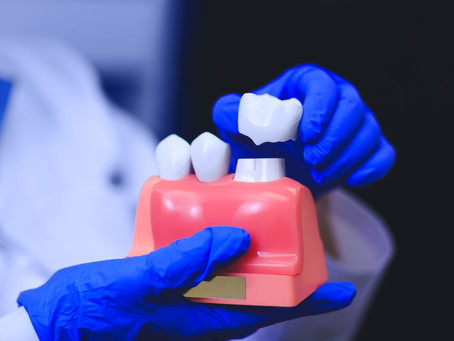 The Dental Crown Procedure: Explained By Your General and Family Dentist in Portland, Oregon