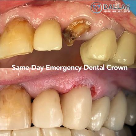 Same-Day Emergency Dental Crown