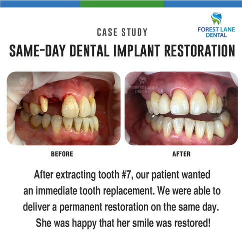 Same Day Dental Implant Restoration